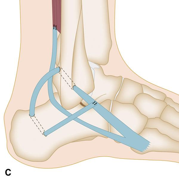 Ankle Tendon Repair